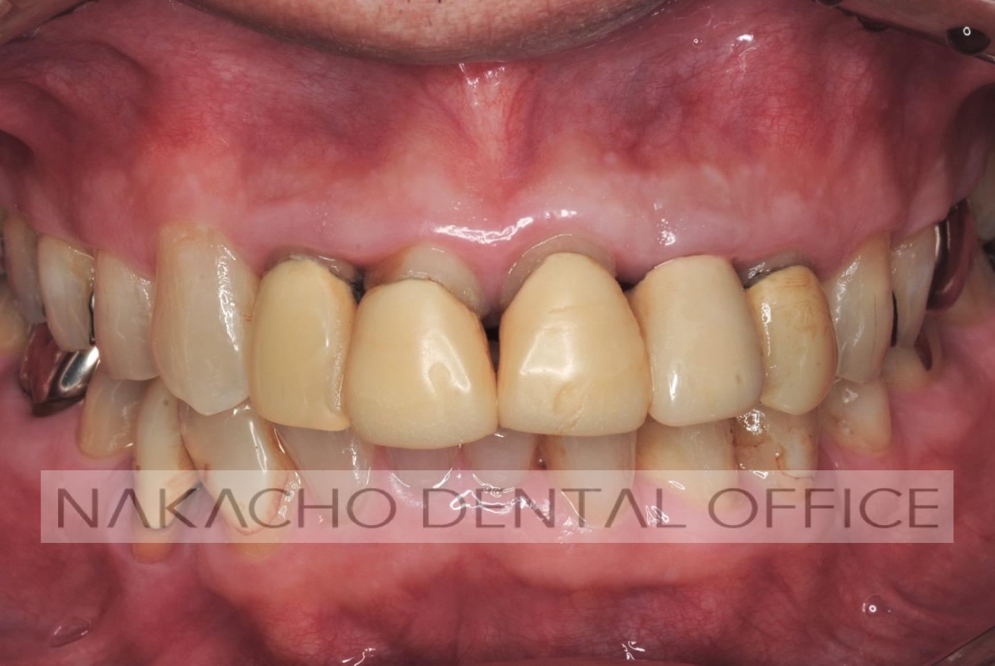 審美歯科 術前