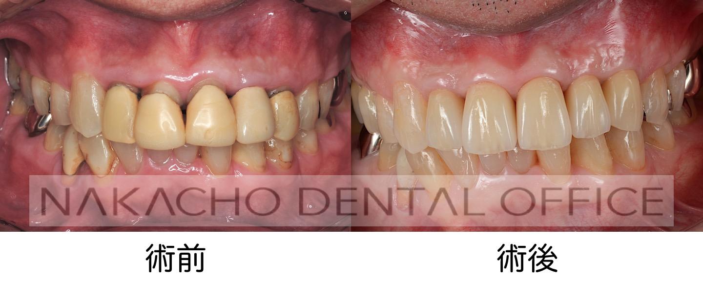 審美歯科 術前術後
