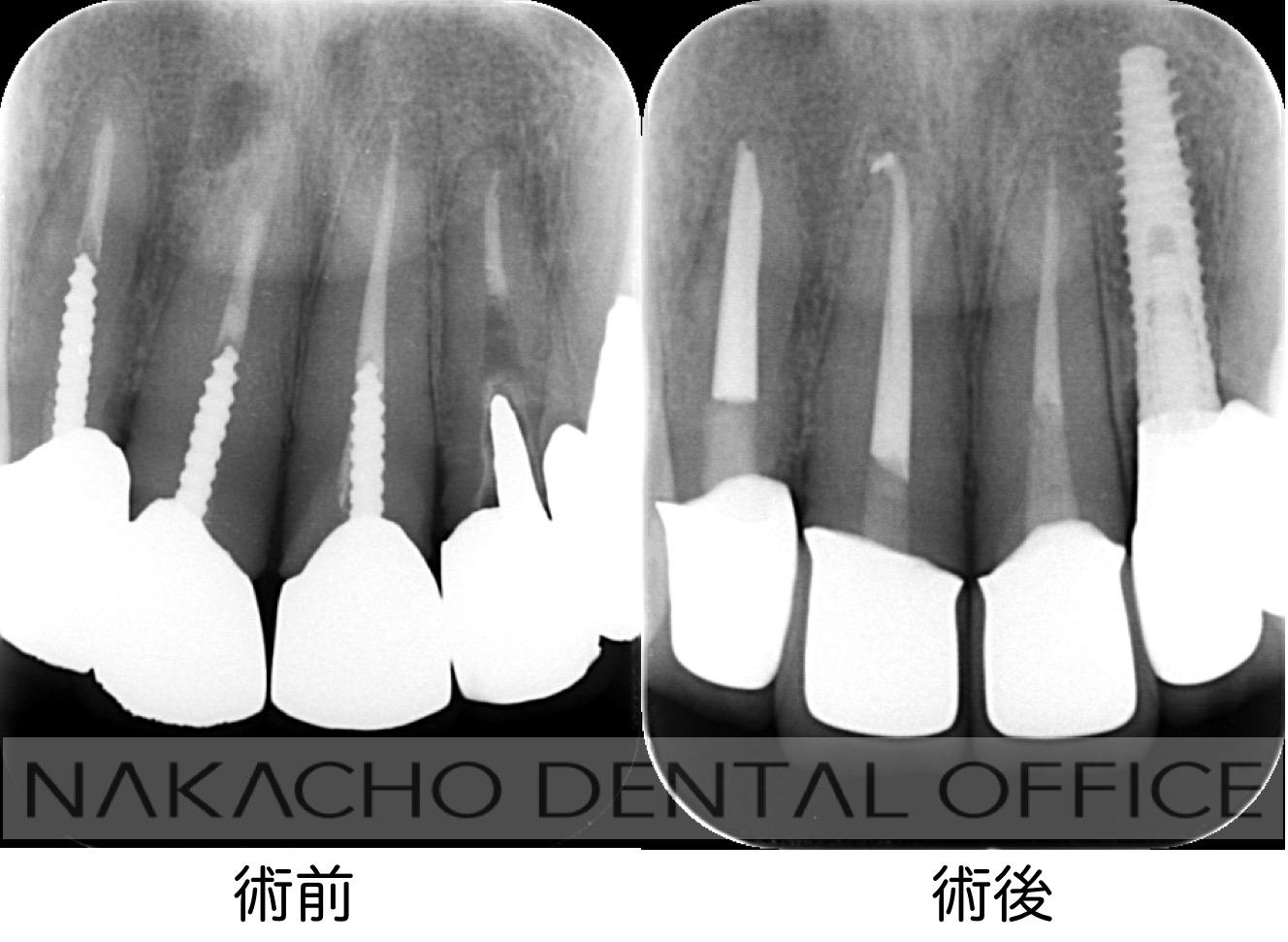 審美歯科 術前術後 レントゲン