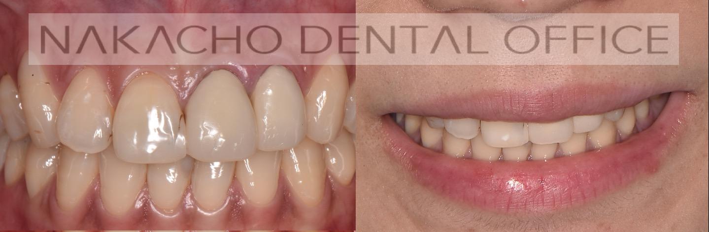 術前 審美歯科