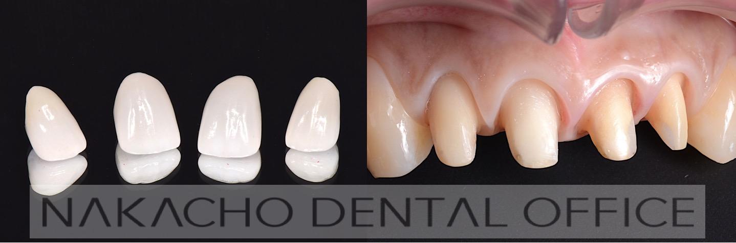オールセラミッククラウン、炎症のない支台歯の状態