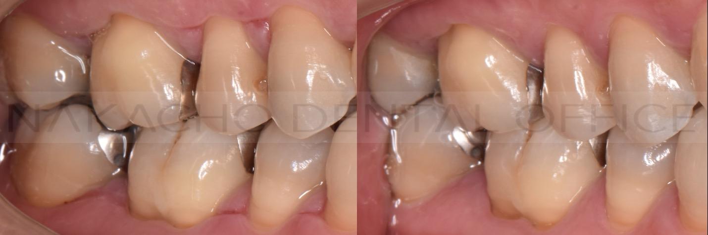 歯ブラシ指導 バス法 予防歯科