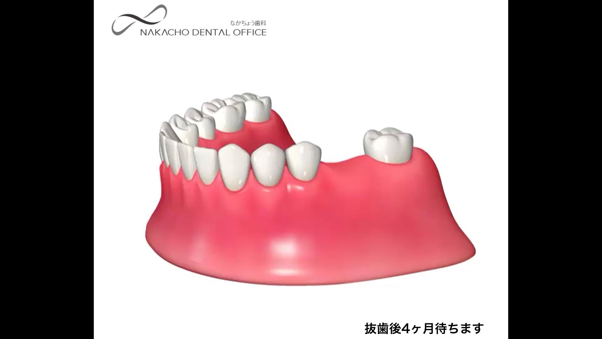 抜歯 インプラント 待機期間