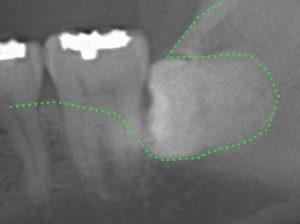 下顎水平埋伏智歯 抜歯 親知らず 歯周病