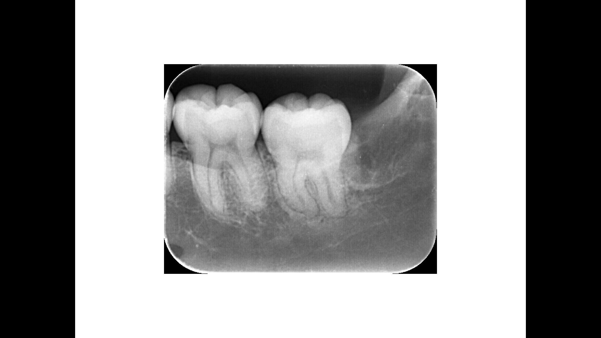 親知らず 抜歯 下の親知らず 麻痺 腫れ 神経