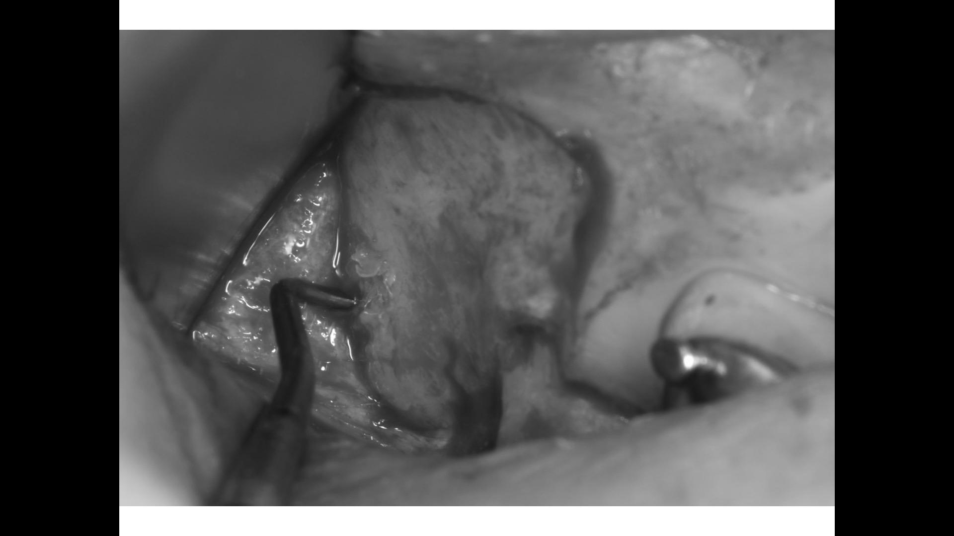 親知らず 抜歯 上の親知らず 横向き 上顎洞