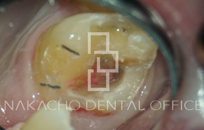 精密治療 マイクロスコープ 虫歯